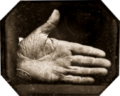 Jonathan Walker branded hand, 1845.png
