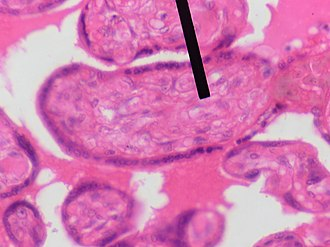 Mesenchyme - Mesenchyme (pointer) stained with H&E