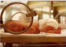 definicion de cuidados del recien nacido