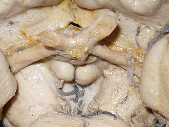 Optic tract - Image: Optic tract and optic nerve