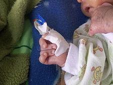 Overlapping fingers – prsty se překládají jeden přes druhý, typický u Edwardsova syndromu