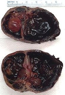 ayuntamiento de adenoma de próstata ctm