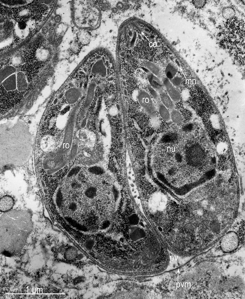 Parasite140105-fig3 Toxoplasmosis in a bar-shouldered dove - TEM of 2 tachyzoites.tif