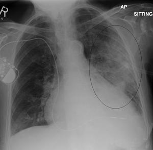 English: Left upper lobe pneumonia with a smal...