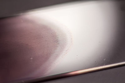Stained peripheral blood smear closeup.jpg