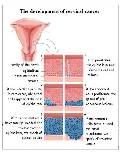 The development of cervical cancer.jpg