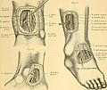 Therapeutisches Lexikon - für praktische Ärzte (1891) (14589900490).jpg