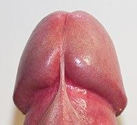 Muitooo bump around anus