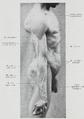 Braus 1921 173.png