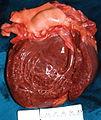 Cardiomegàlia img358.jpg