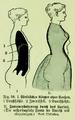 Die Frau als Hausärztin (1911) 058 Formenveränderung des weiblichen Körpers durch das Korsett.png