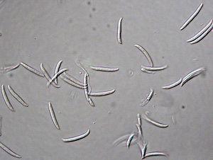 Fusarium solani - Image: Fusarium solani (Mart.) Sacc. 5393379