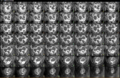 MRI HIFU 30 khối u xơ tử cung.png