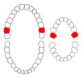 Maxillary second molars01-01-06.png