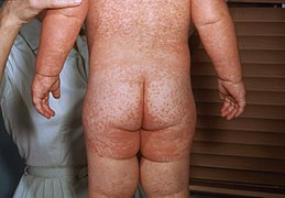 Measles rash PHIL 4497 lores.jpg