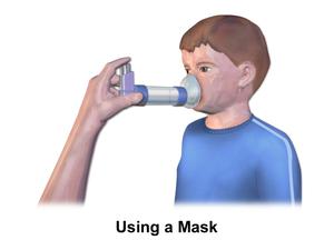 Allergies in children - Metered-Dose Inhaler Mask (Child)