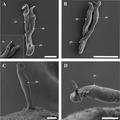Parasite170078-fig3 Cichlidogyrus philander (Monogenea, Ancyrocephalidae).png