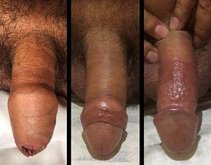 penetración vaginal erección pérdida
