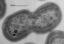 TEM of Prochlorococcus MED4 dividing