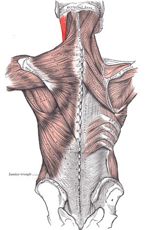 Muscles connecting the upper extremity to the ...