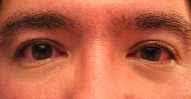 File:Scombroid food poisoning red eyes.jpg