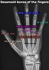 Sesamoid bones of the fingers.jpg