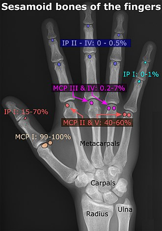 Accessory bone - Prevalence and locations of sesamoid bones of the hand.