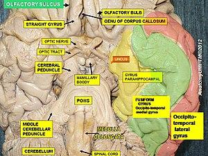 Olfactory sulcus - Image: Slide 2ee