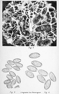 <i>Capillaria hepatica</i> Species of roundworm