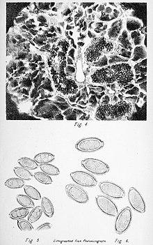 diphyllobothriasis arată