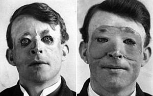 Harold Gillies - Walter Yeo, a sailor injured at the Battle of Jutland, is assumed to be the first person to receive plastic surgery in 1917. The photograph shows him before (right) and after (left) receiving a flap surgery performed by Gillies.