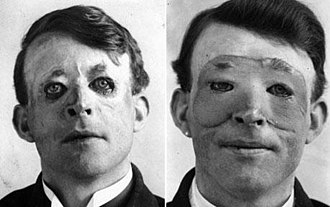 Harold Gillies - Walter Yeo, a sailor injured at the Battle of Jutland, is assumed to be the first person to receive plastic surgery in 1917. The photograph shows him before (left) and after (right) receiving a flap surgery performed by Gillies.