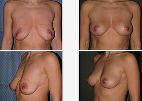 10614 Dr. Placik Breast Lift Chicago, Illinois Arlington Heights.jpg