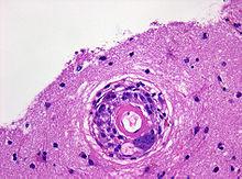 Beta Amyloid Plaques >> Pathologie: Entzündliche ZNS-Erkrankungen – Wikibooks ...