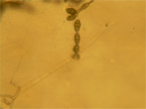 Alternaria alternata - Alternaria alternata spores in a chain