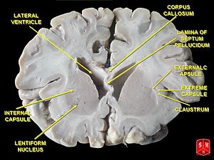 Frontal section of brain