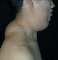 Lipoma de cuello imagenes