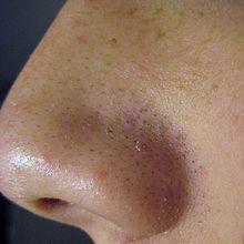 Las causas del surgimiento del acné a las mujeres