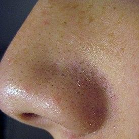 Нездоровая любовь к загару стала причиной появления дыры на носу ... | 274x274