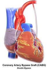 Coronary artery bypass surgery - Wikiwand