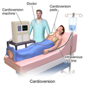 Blausen 0169 Cardioversion.png