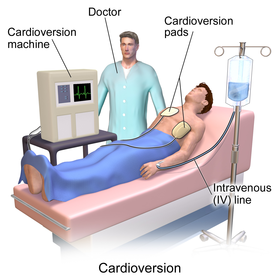 Cardioversion Wikipedia