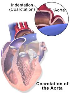Schéma koarktace aorty