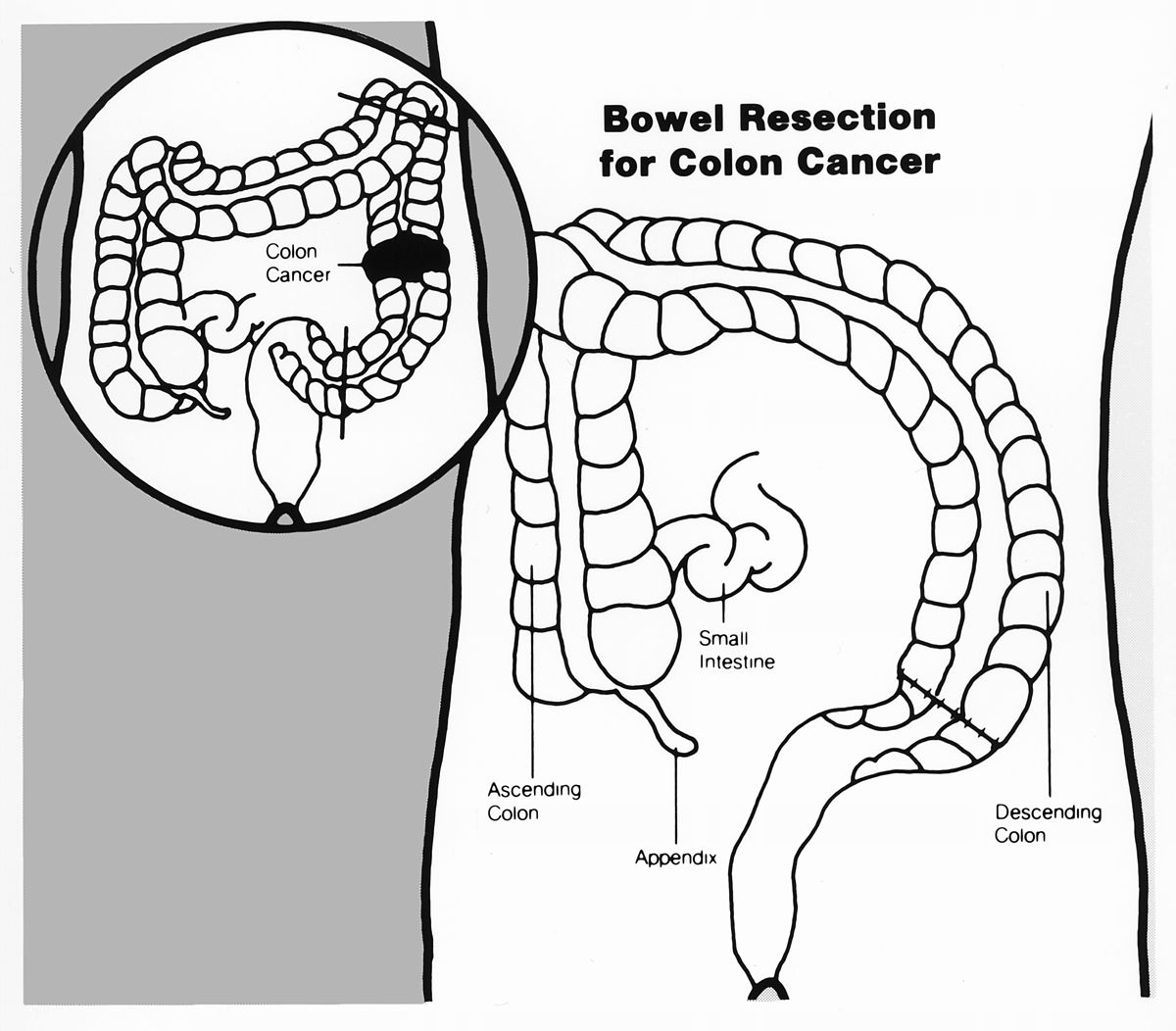 images of colon polypectomy