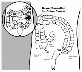 Bowel resection illustration.jpg