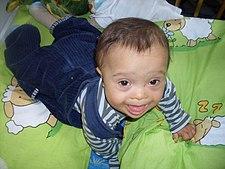 Roční chlapec s Downovým syndromem