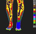 CRPS-RSD of the left foot.jpg