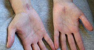 Scars from carpal tunnel release surgery. Two ...