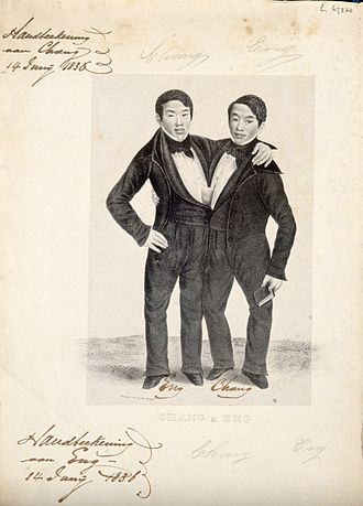 Alfred Hoffy - Siamese twins Chang and Eng, promotional lithograph by Alfred Hoffy c.1836–37.