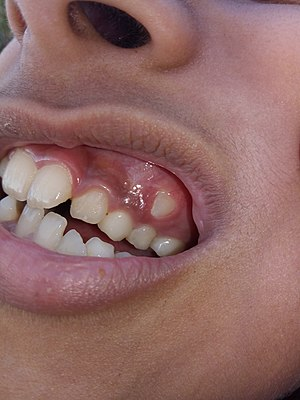 Dental problem in 10-year-old girl - 1.jpg